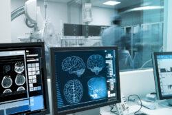 human brain xray laboratory